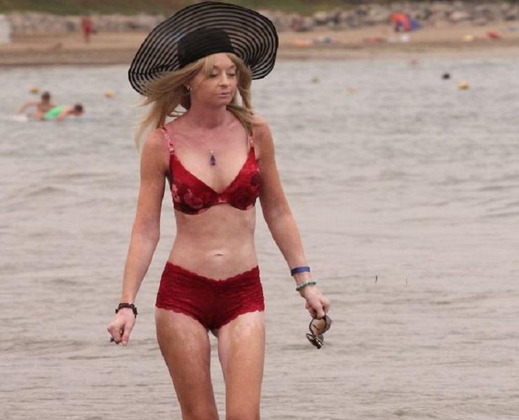 Lauren Harries strips topless on beach to show boob job