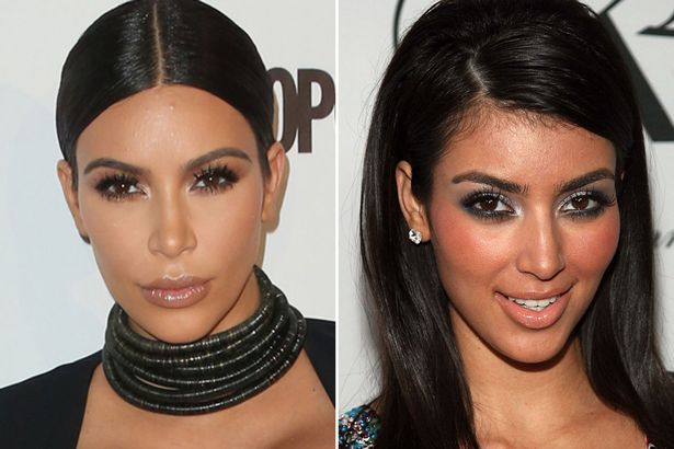 Kim Kardashian Reacts To Her Before Surgery Photos The